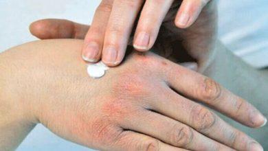 توصیه خشکی پوست در زمستان
